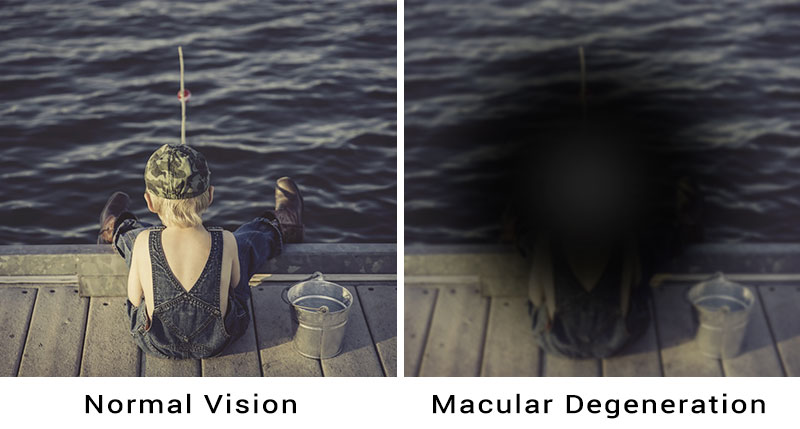macular degeneration treatable adult eyecare local eye doctor near you